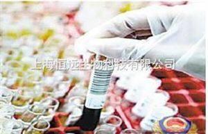 兔抗猴IgG-HRP,兔抗猴批发,兔抗猴