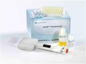 人脱氢表雄酮硫酸酯试剂盒